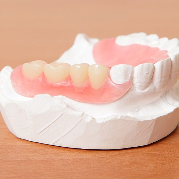 Model smile with partial denture