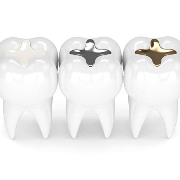 Three types of dental fillings side by side